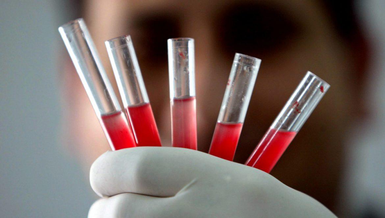 Desarrollan una terapia génica que cura la hemofilia A con tan sólo una dosis